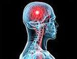 Dolg delavnik povečuje tveganje za možgansko kap